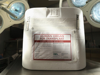 Organs discarded before transplant on the rise