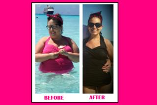 Regret following weight loss surgery