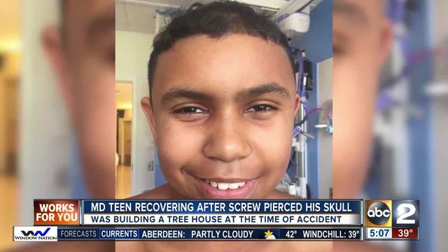Screw ends up in Maryland boy's head