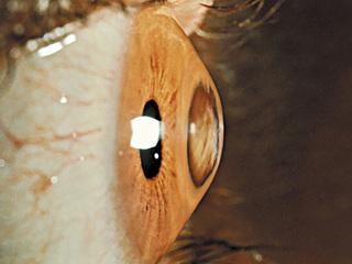 Center to eradicate adolescent eye disease opens